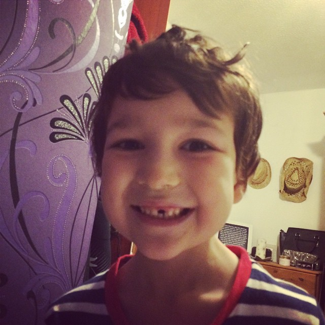 December 2014 - First tooth gone!